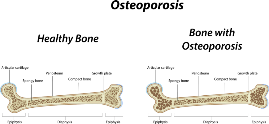 factors that increase the risk of developing osteoporosis Osteoporosis, or bone loss, affects people of all different ages and backgrounds but there are certain risk factors that may make you more susceptible to developing osteoporosis some of the most common osteoporosis risk factors are often unavoidable that is, you can't control their occurrence .